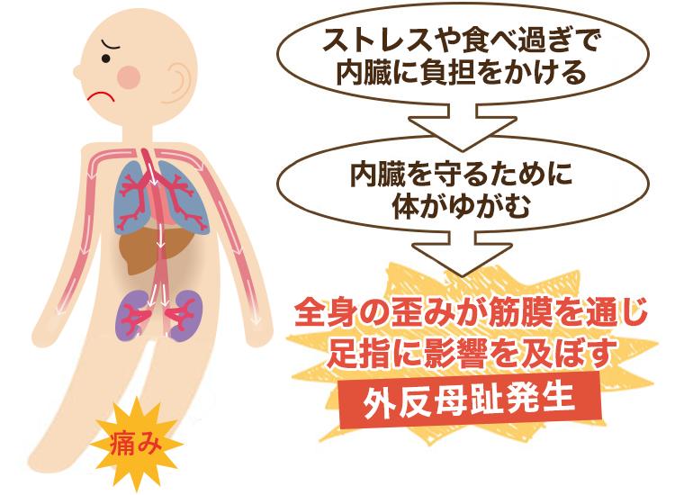 内臓が原因の外反母趾・強剛母趾・内反小趾