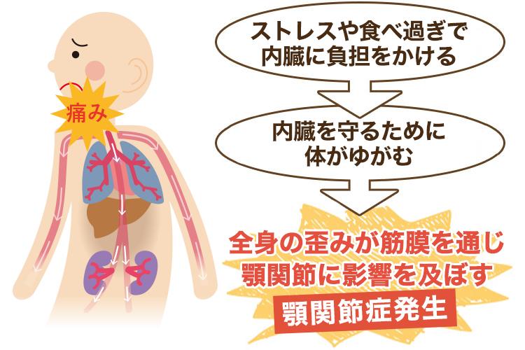 内臓が原因の顎関節症