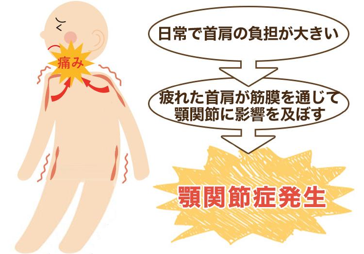 首や肩の疲れが原因の顎関節症